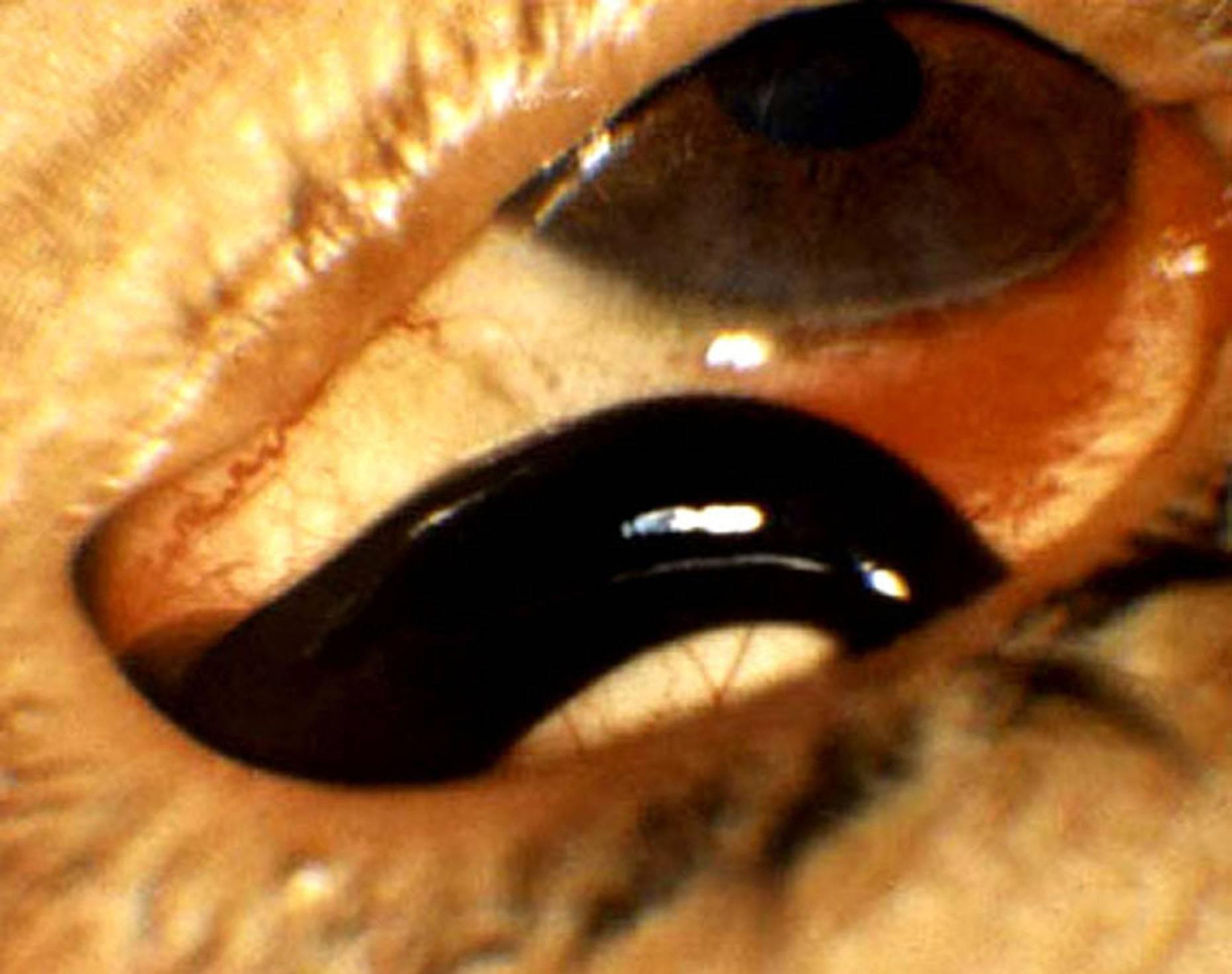 глазные глисты
