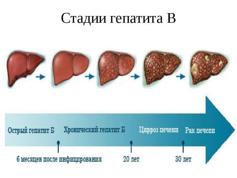 острый гепатит в выздоровление