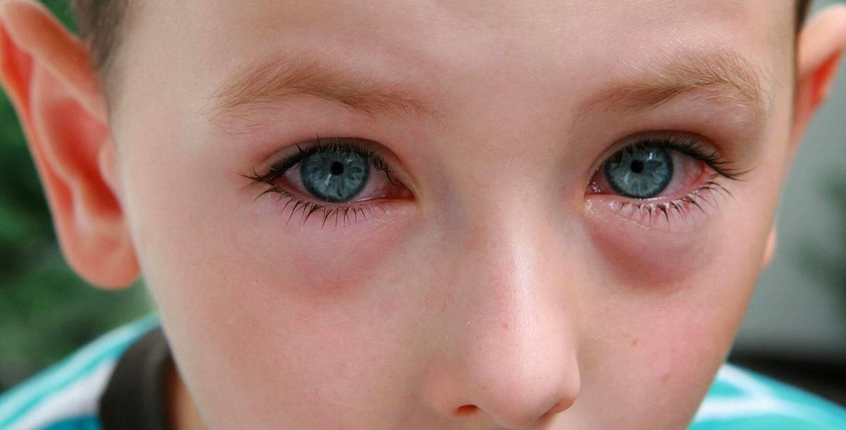 Маме на заметку: что делать, если у ребёнка красные глаза и чешутся?