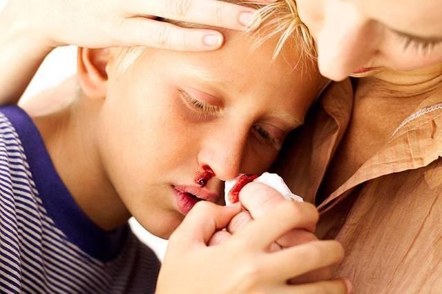 Почему часто идёт кровь из носа у подростка: все о проблеме и первой помощи
