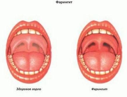 Методы закаливания горла для укрепления миндалин