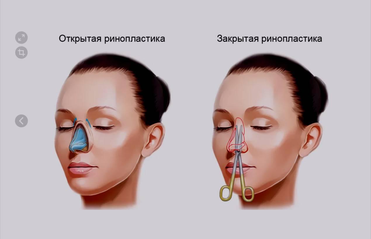 Репозиция костей носа (операция при его переломе): показания, проведение, реабилитация