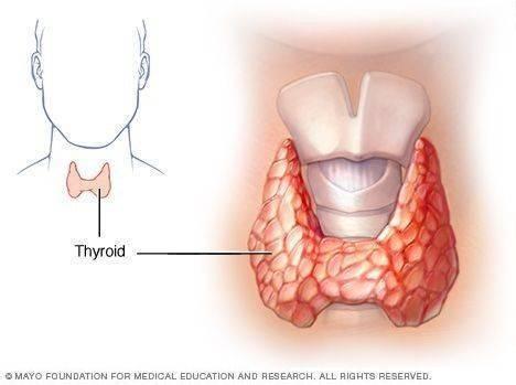 Каковы симптомы гипотиреоза у мужчин?