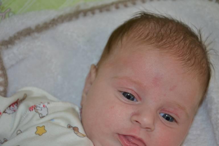 Кожа ребенка: сыпь, пятна, диатез. как распознать и лечить? пигментные пятна, опрелости, потница у новорожденных