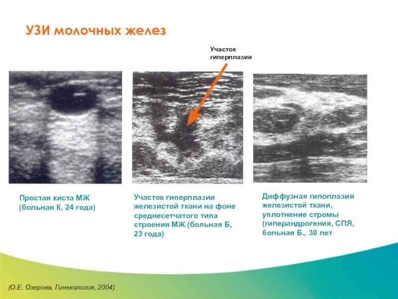 Диагностика молочной железы: узи и другие обследования