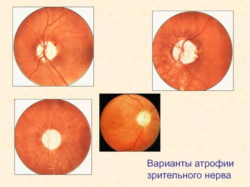 глазной нерв атрофия