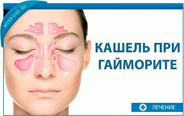 Кашель при синусите симптомы и лечение