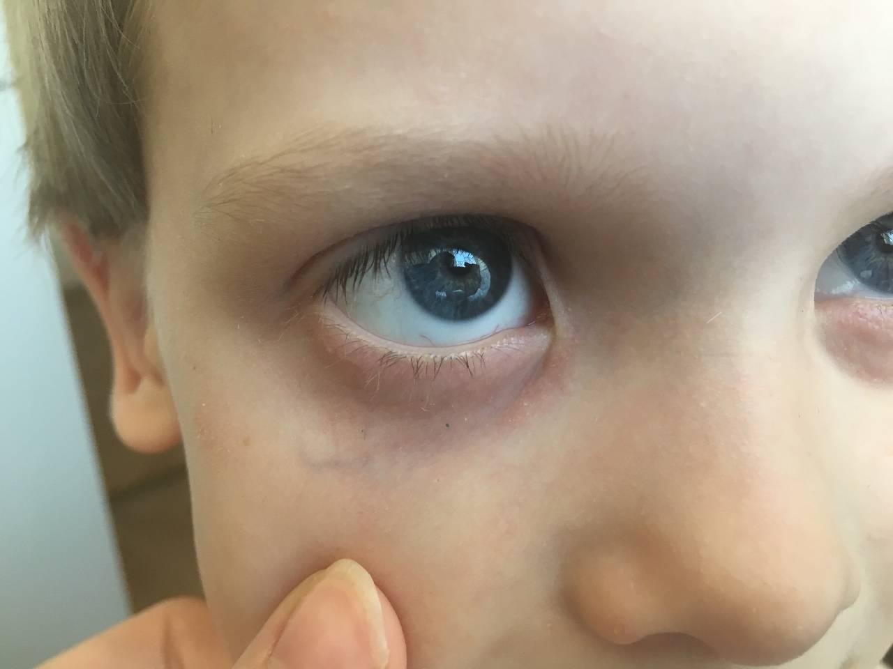 у ребенка отек глаз что делать