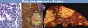 Продолжительность жизни при метастазах в печени