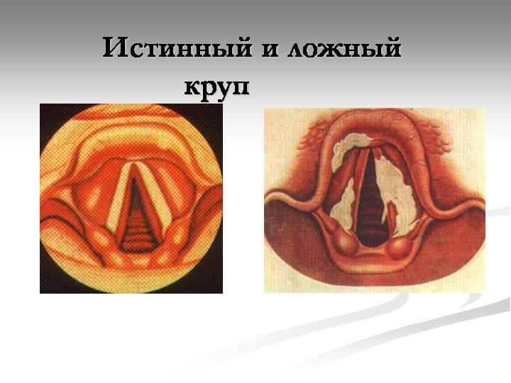 Воспаление голосовых связок: классификация, причины, симптомы и лечение