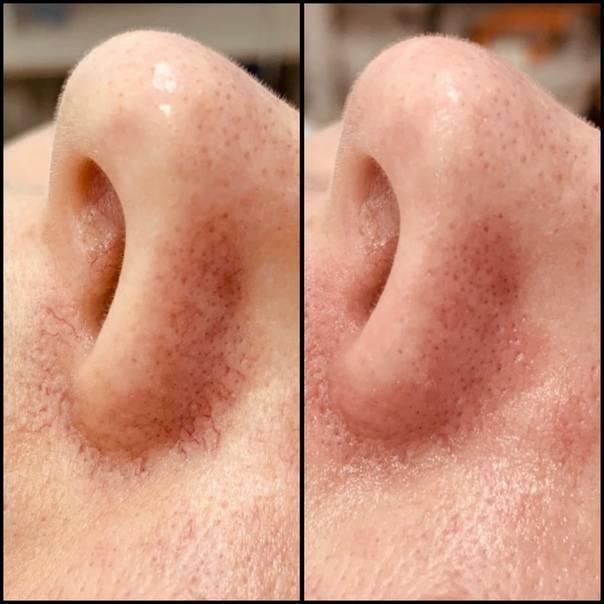 Анатомия человека: полость носа. слизистая полости носа. зоны полости носа. околоносовые пазухи