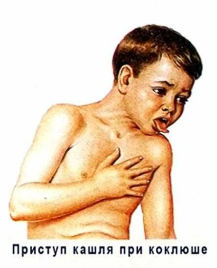 Спазм гортани у взрослых