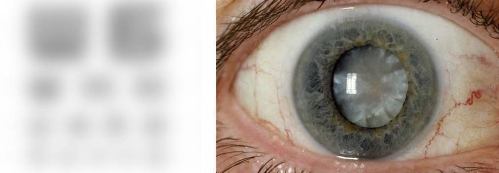 Почему мутнеет в глазах