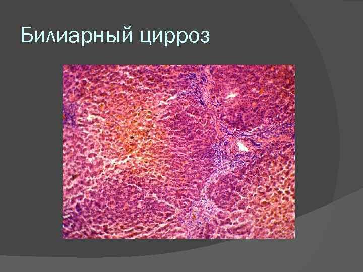 первичный билиарный цирроз печени лечение