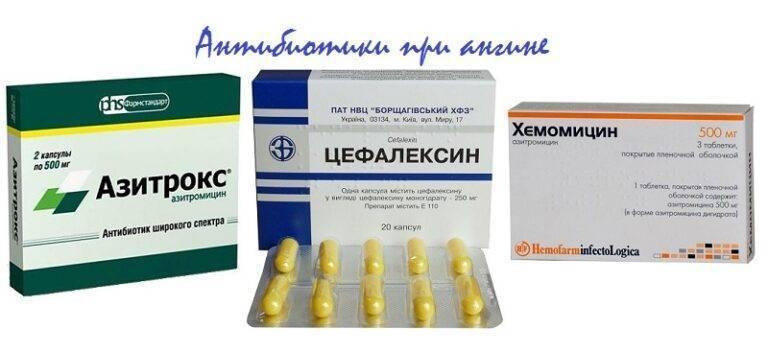 Антибиотики при ангине взрослому