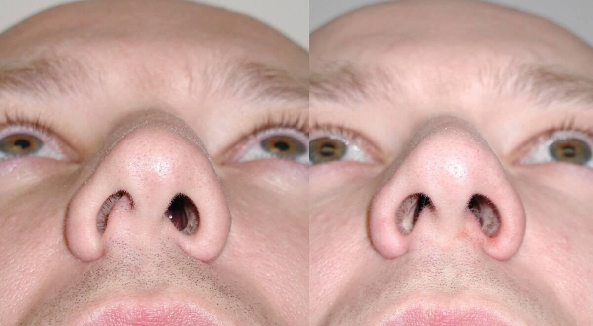 Синехии полости носа