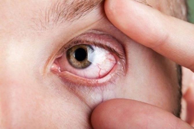 Что такое кандидоз глаз и как его лечить?