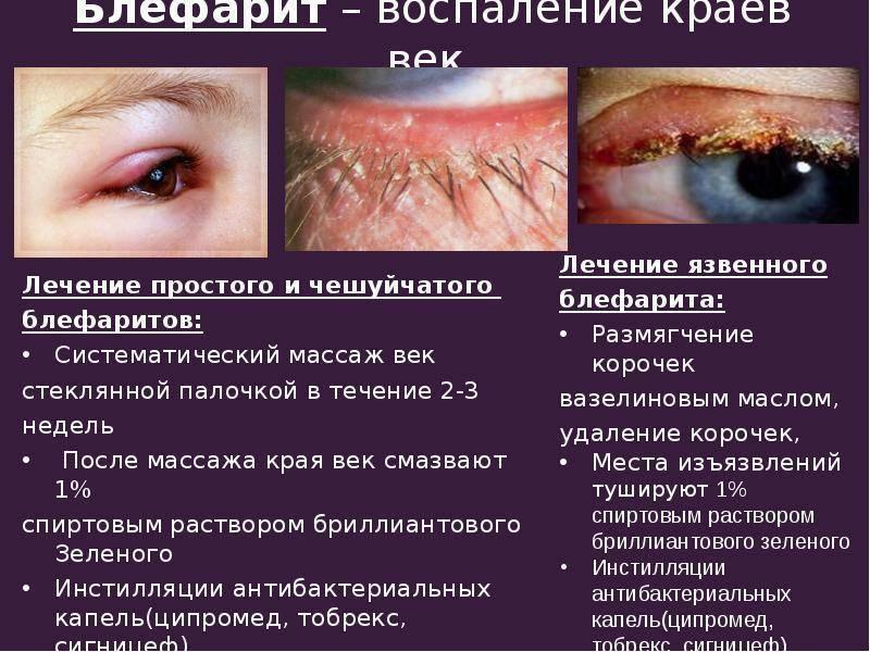 блефарит глаз симптомы