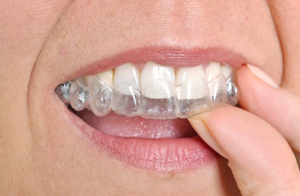 что делать если кривые зубы