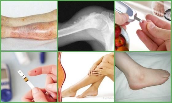 Использование перекиси водорода в лечении артроза