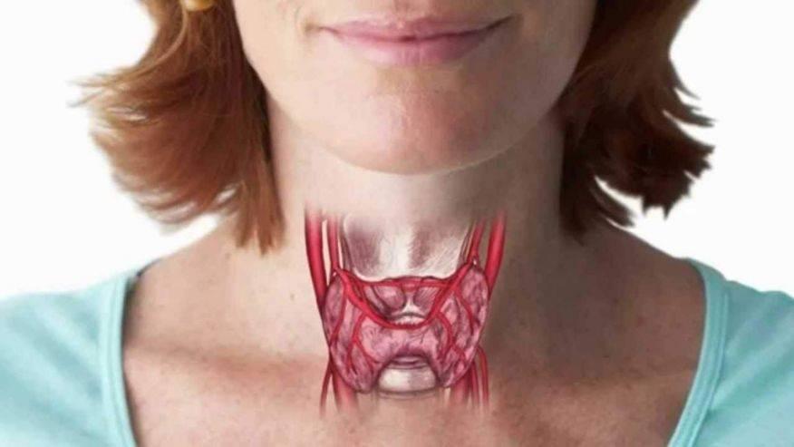 Гипотиреоз после удаления щитовидки: гормональные препараты, йод и другие способы поддержать здоровье