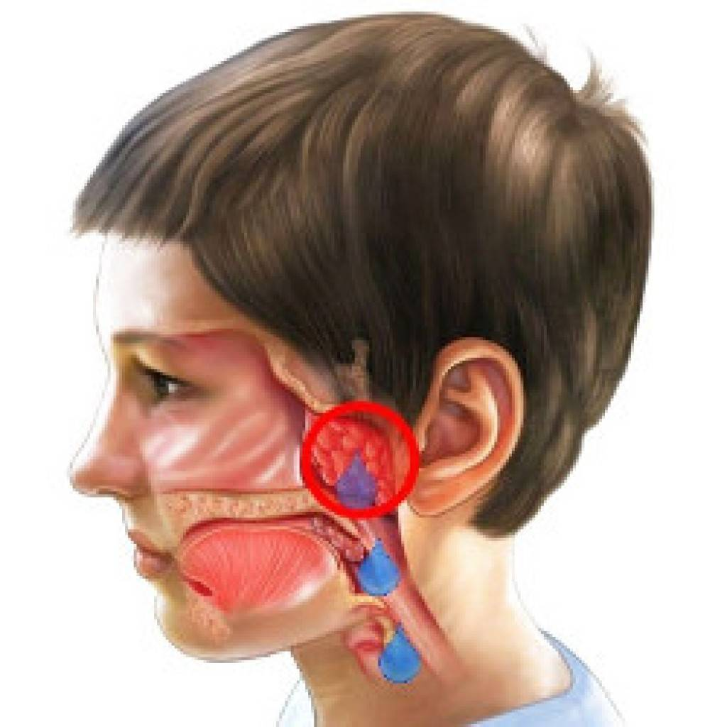 Аденоидит: симптомы патологии, методы диагностики и терапии