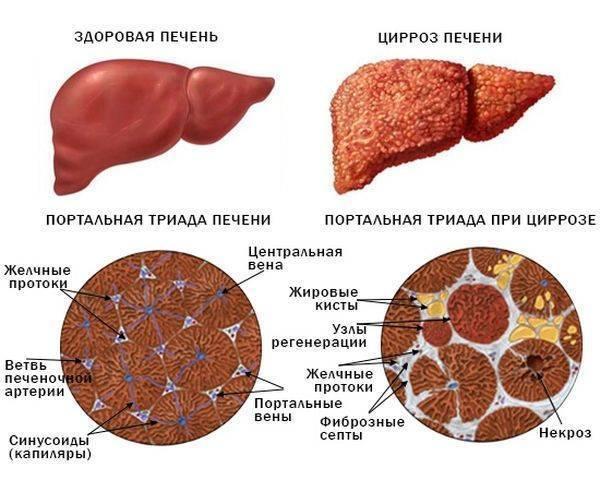 Продолжительность жизни при мелкоузловом циррозе печени