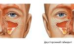 Двухсторонний гайморит: причины, признаки, диагностика и лечение