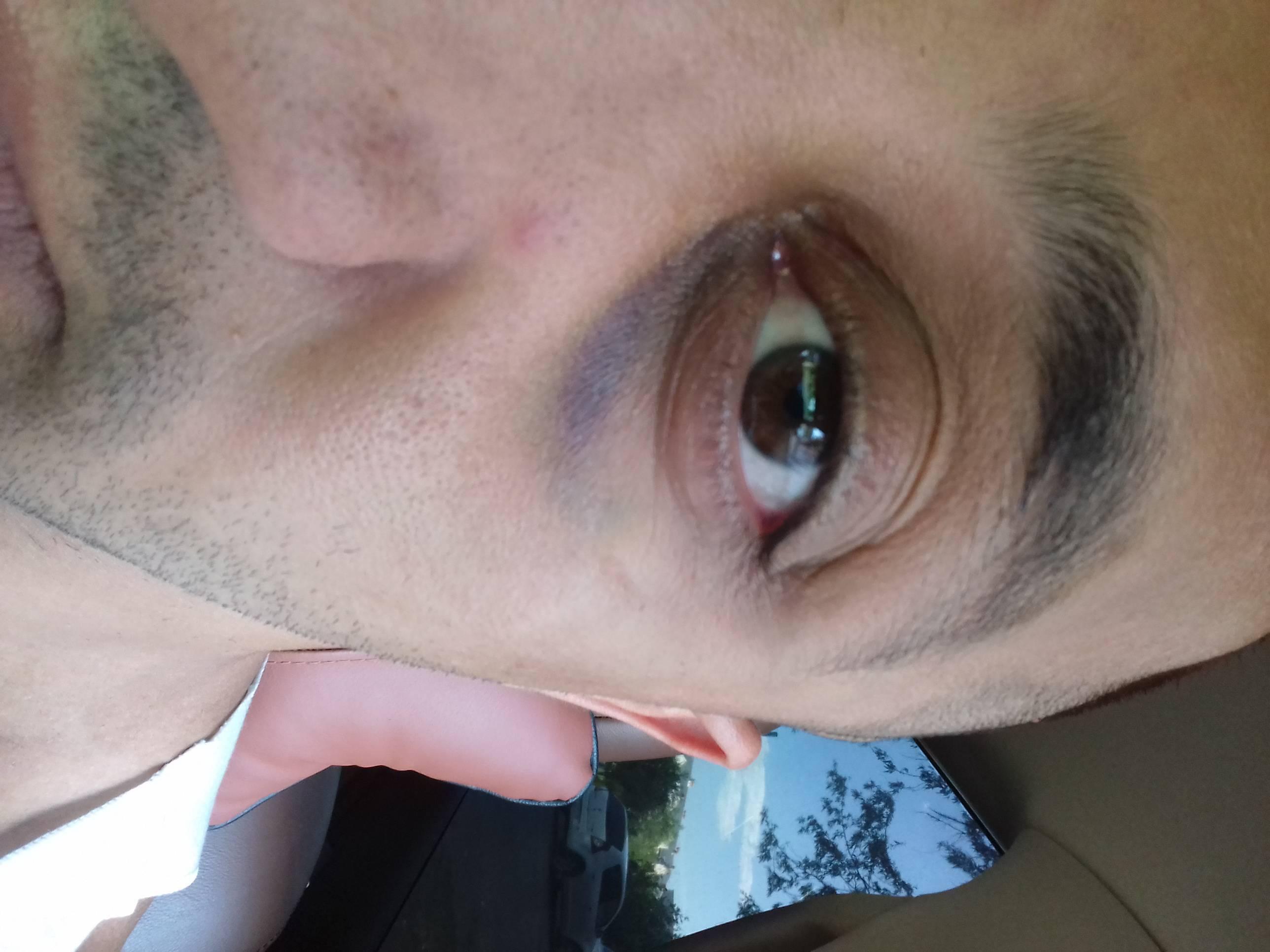 лечение гематомы глаза народными средствами