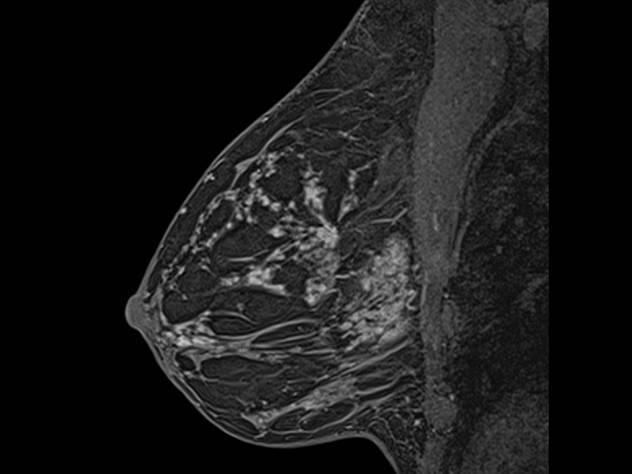 Мрт молочной железы с контрастированием: что это такое и когда назначается