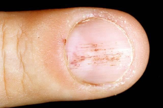 Псориаз ногтевой пластины: как справиться с проблемой