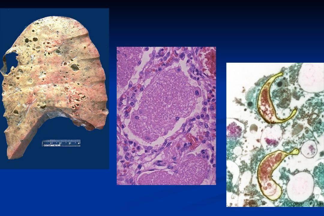 Пневмоцистная пневмония (пневмоцистоз)