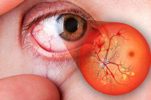 Ангиопатия сетчатки глаза у ребенка: проявления и лечение