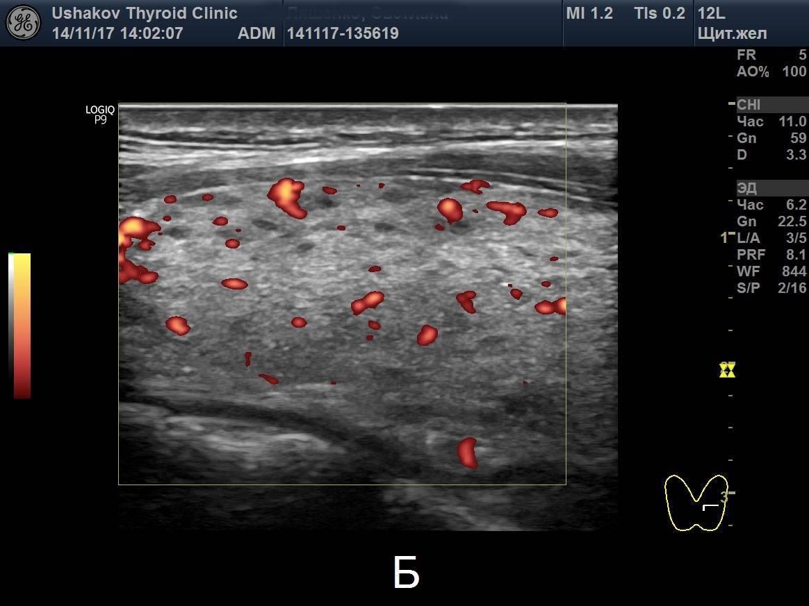 Анализы крови при щитовидной железе симптомы и лечение