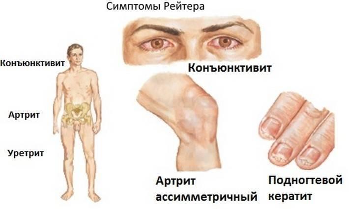 Хламидиоз у мужчин - симптомы, лечение, признаки, последствия