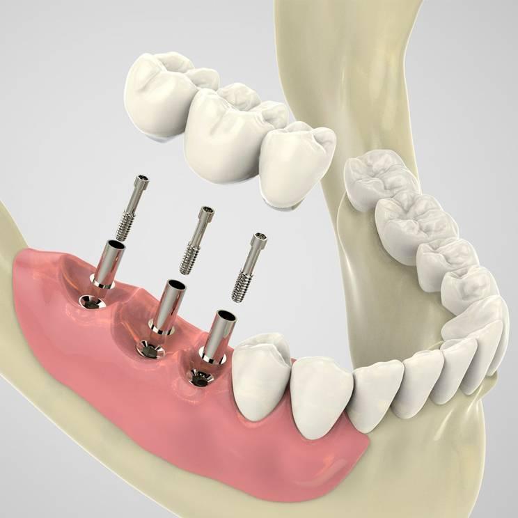 Металлокерамика на передние зубы — протезирование металлокерамическими коронками, цены, фото