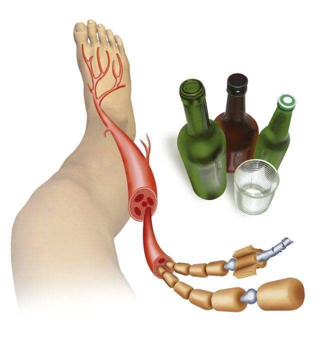 полинейропатия алкогольная лечение