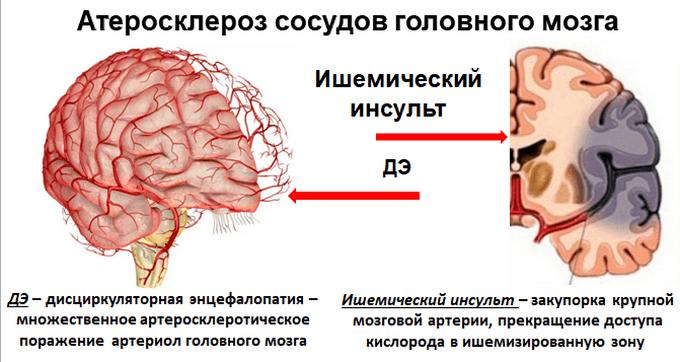 Лечение атеросклероза сосудов головного мозга — препараты