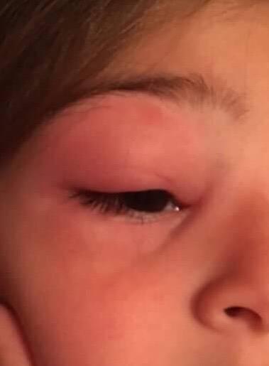 Опух глаз у ребенка - верхнее веко и нижнее: причины, и лечение