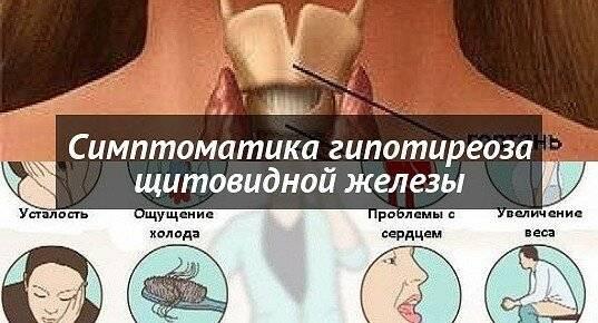 Выпадают сильно волосы после удаления щитовидной железы | про щитовидку
