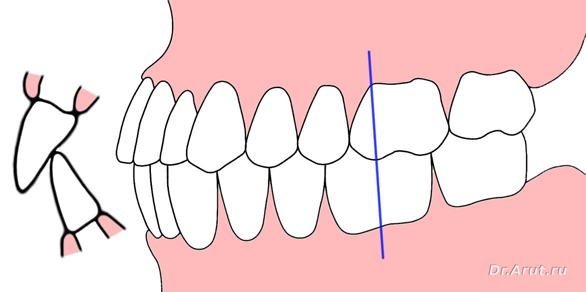 Ортогнатический прикус: особенности и методы исправления