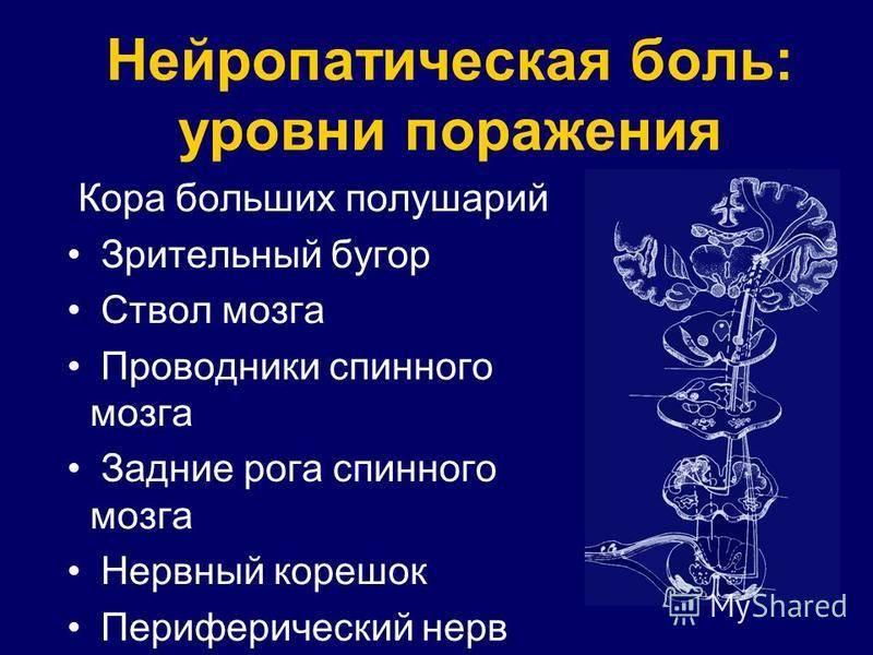 Нейропатическая боль — википедия с видео // wiki 2