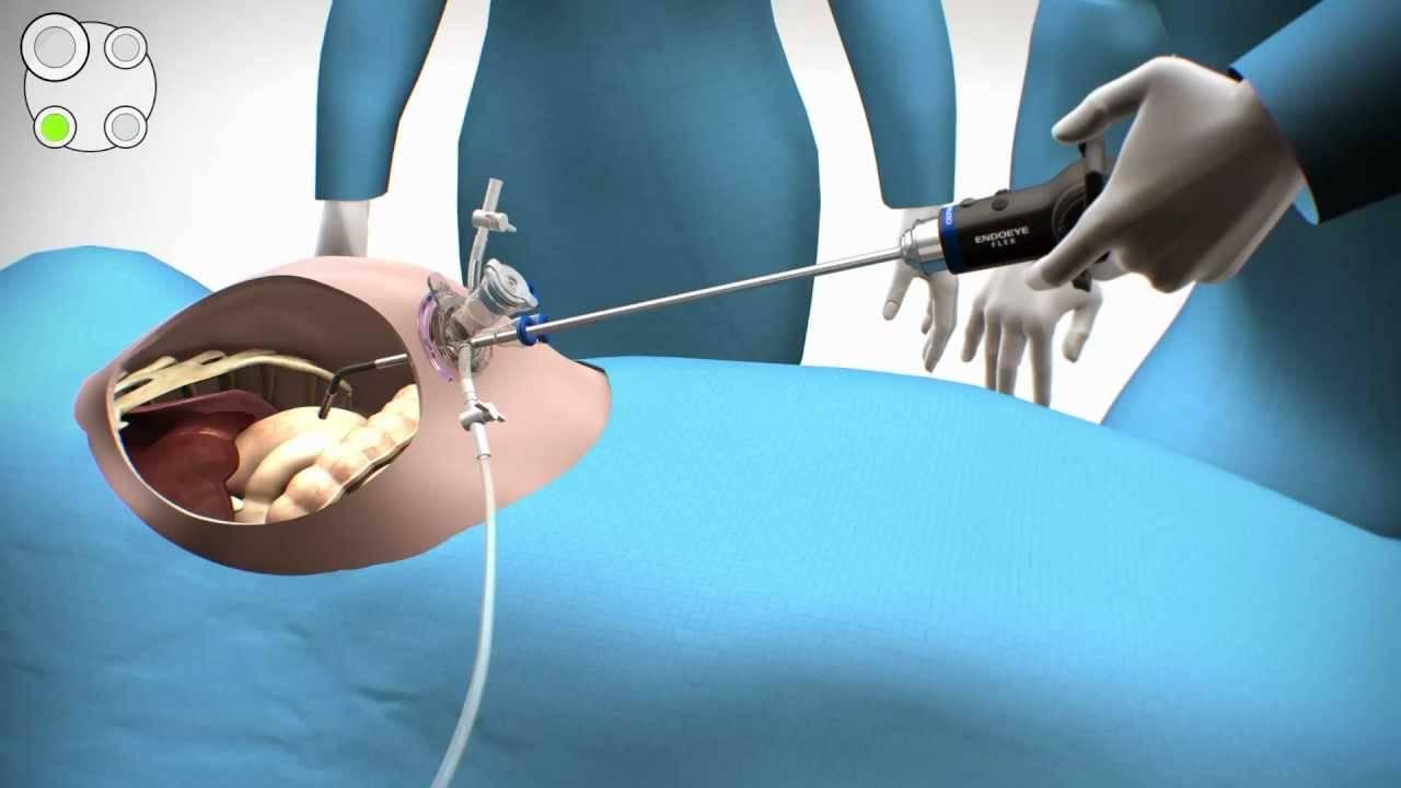 Операция по удалению желчного пузыря лапароскопическим путем: жизнь после и реабилитация
