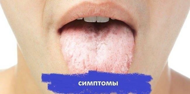Чем лечить герпес на языке у взрослого
