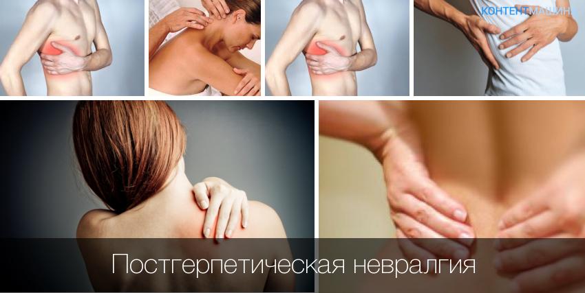 Лечение постгерпетической невралгии у пожилых людей