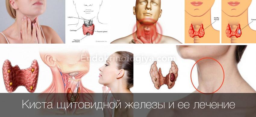Коллоидная киста что. коллоидная киста щитовидной железы: что это, почему образуется и как лечить? коллоидная киста щитовидной железы: симптомы и диагностика