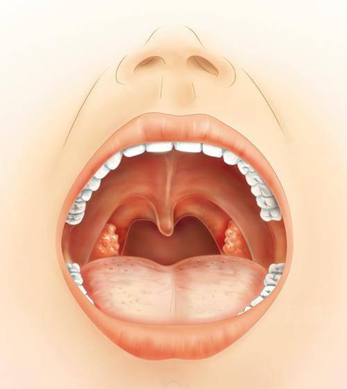 лечение герпесной ангины