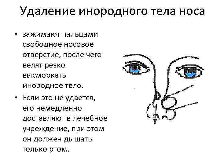 Инородные тела в носу