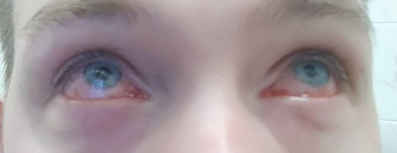 Зрение журнал: химический ожог глаз, клиника, лечение, прогноз