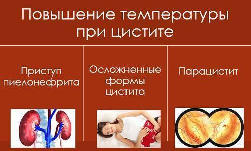 цистит температура